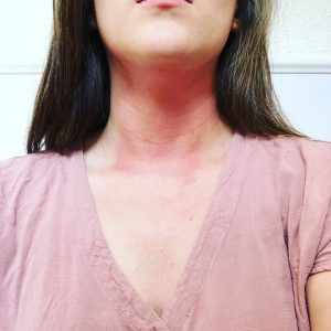 neck results