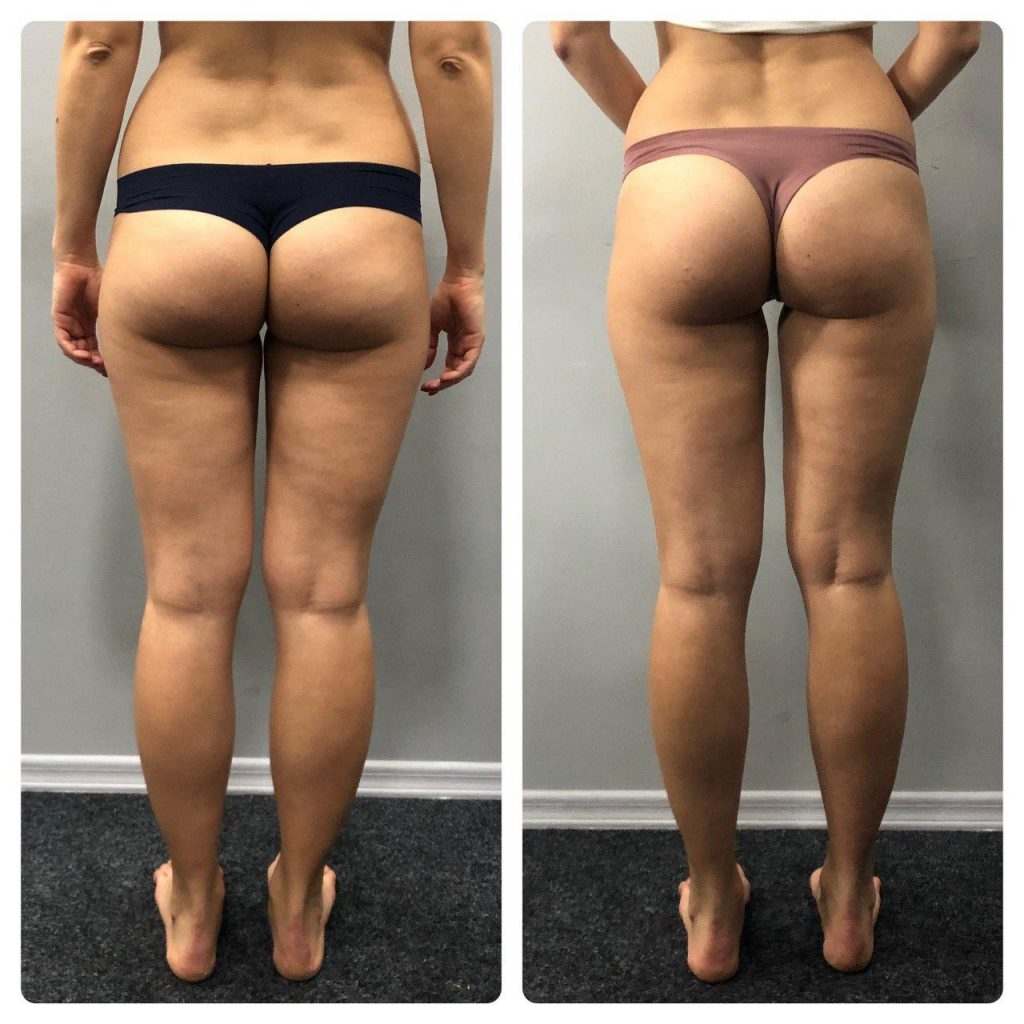 brazilian butt-lift before and after results